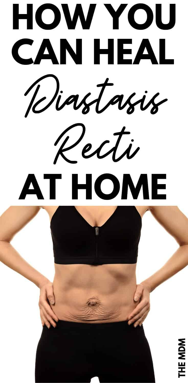 Diastasis Recti Exercises to Heal Mummy Tummy At Home